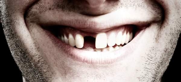 приснилось что выпал зуб